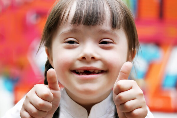 Portrait of beautiful disabled girl that giving thumbs up.